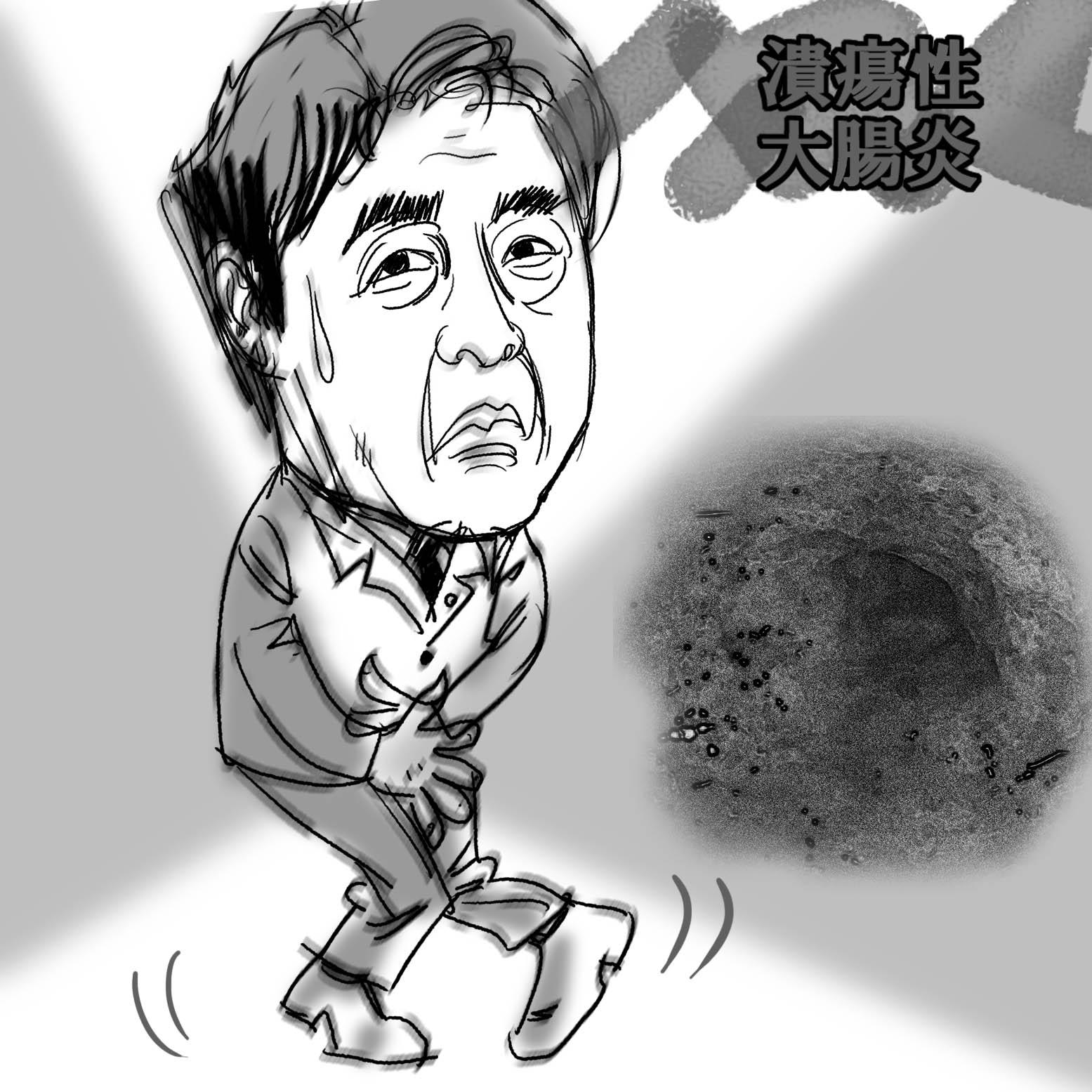 20130422column<潰瘍性大腸炎>