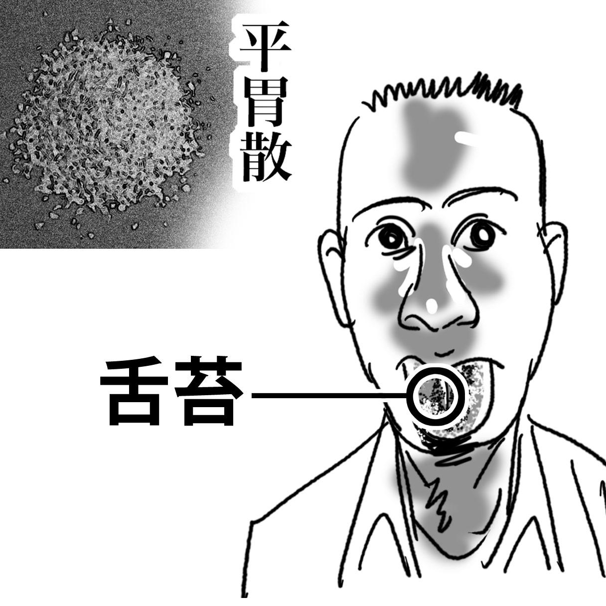 20130113_column舌苔