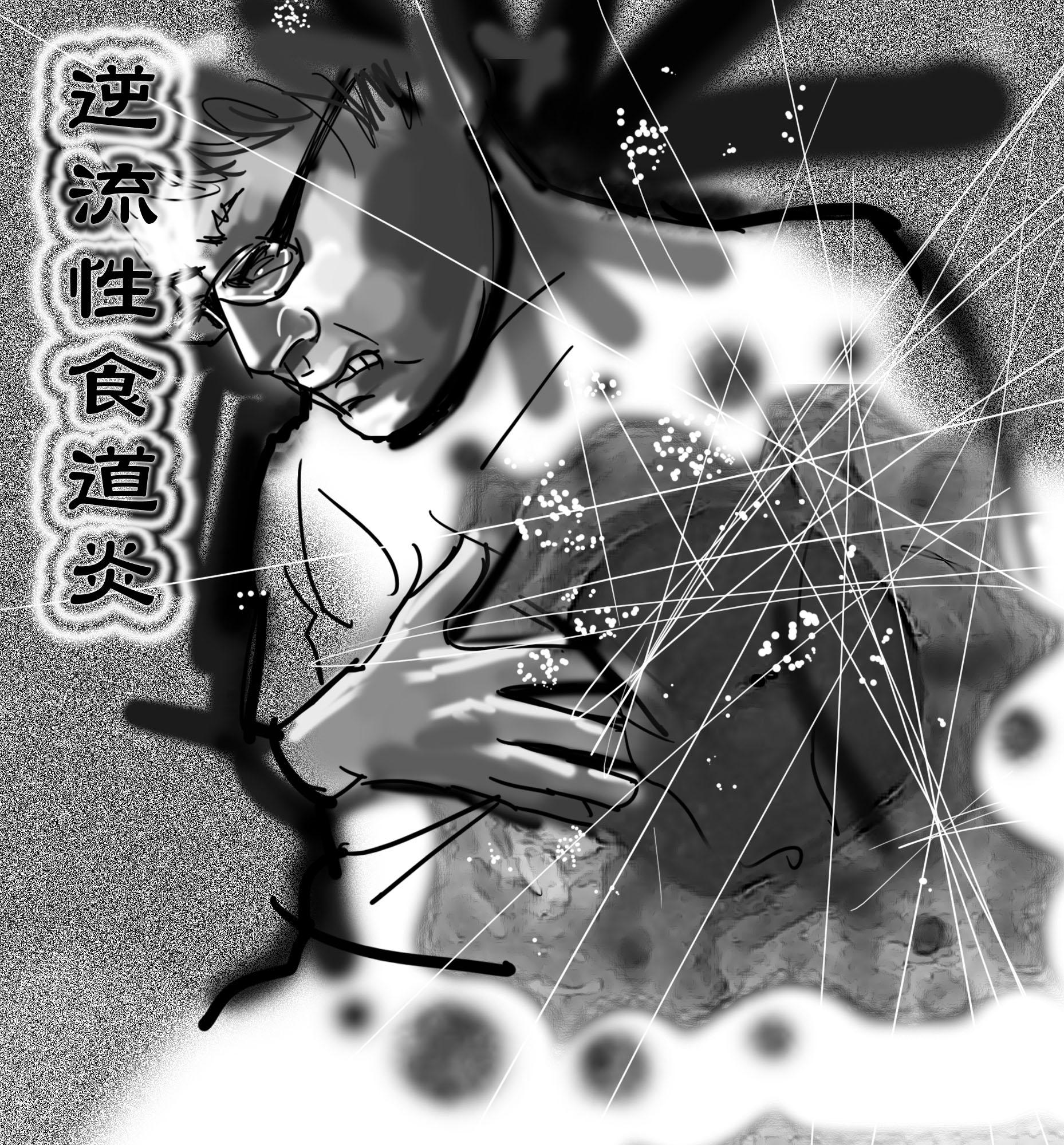 20130630健康【逆流性食道炎】