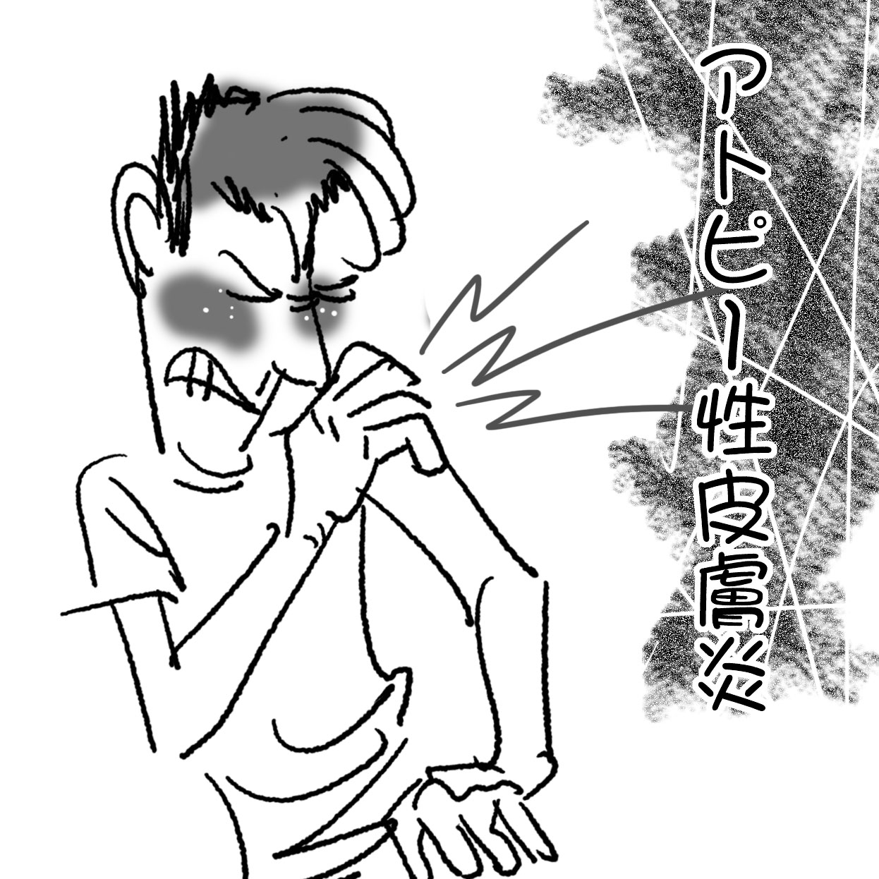 20130630column_アトピー性皮膚炎