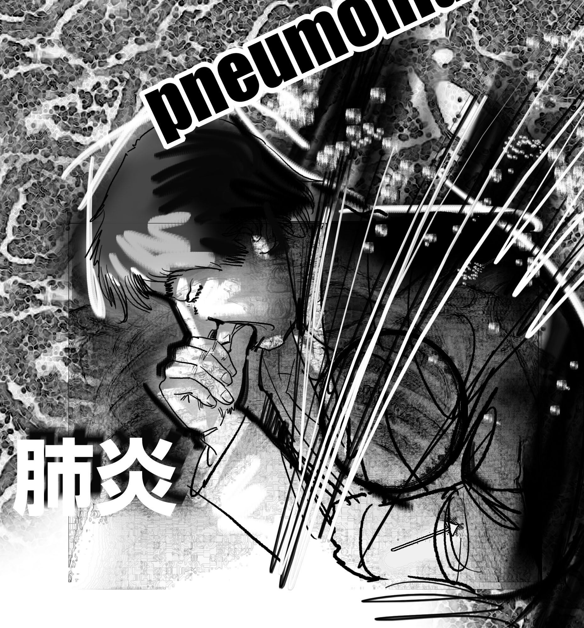 20130406_肺炎