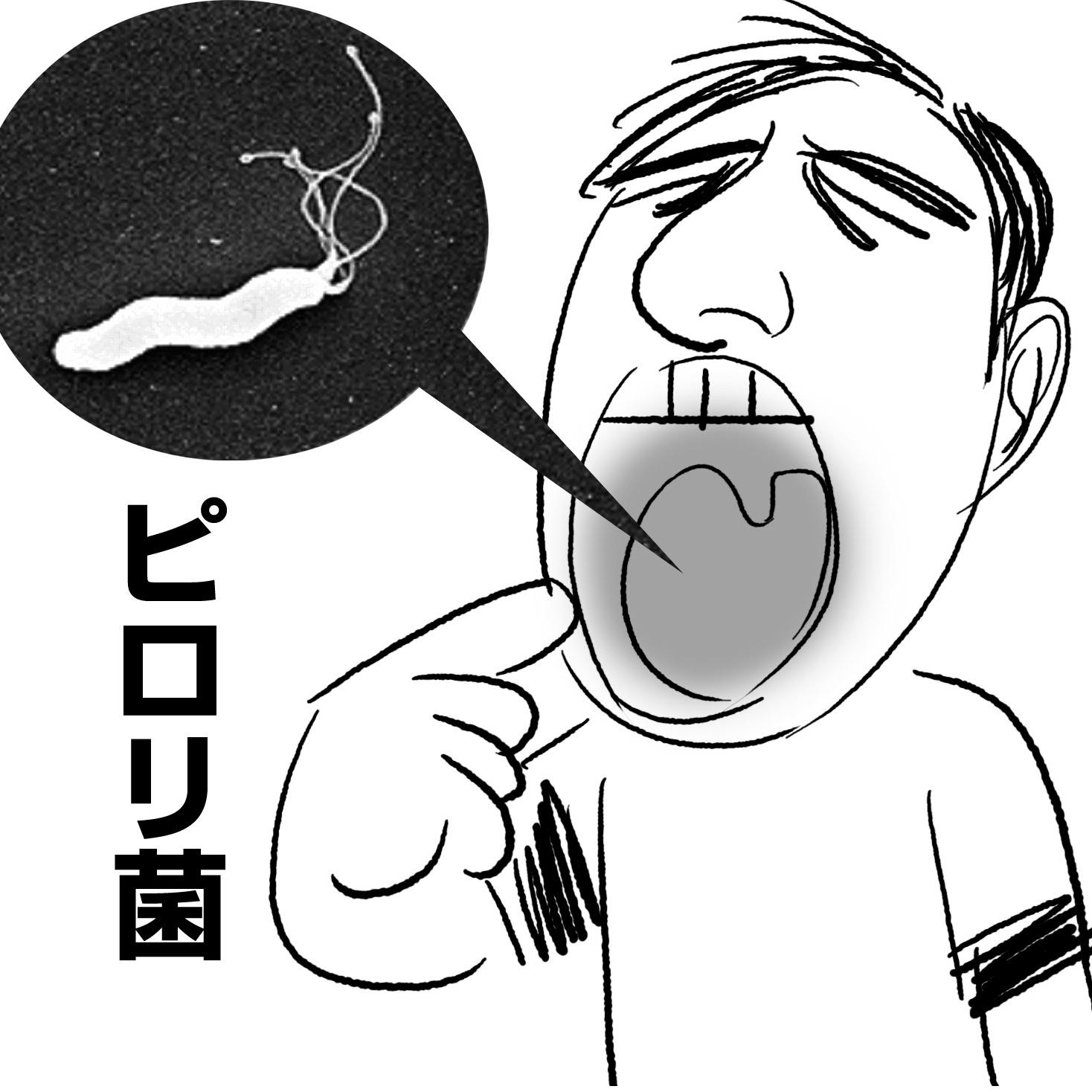 20140414_専門医_ピロリ菌